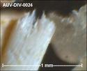 microfossiles divers d'Auvers sur Oise ( suite) Auv-di38