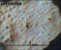 microfossiles divers d'Auvers sur Oise ( suite) Auv-di40