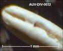 microfossiles divers d'Auvers sur Oise ( suite) Auv-di47