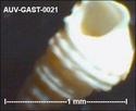 Microfossiles d'Auvers sur Oise Auv-ga36