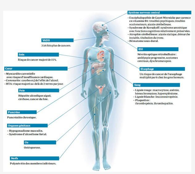 Les organes touchés par l'alcool. 2014-014