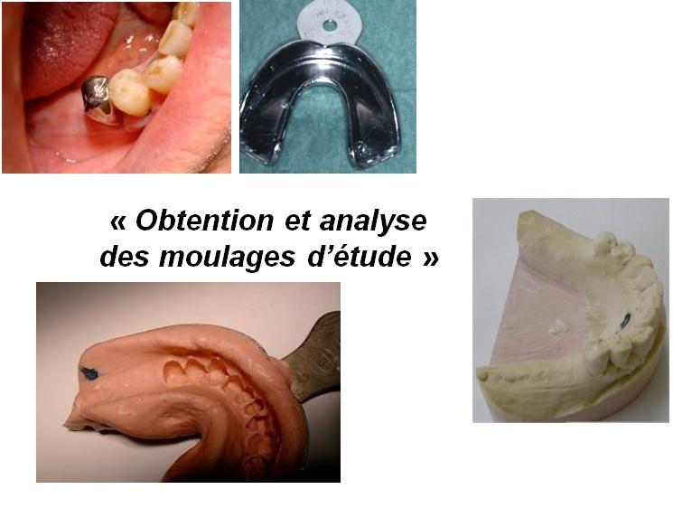 obtention et analyse des moulages d'étude 310
