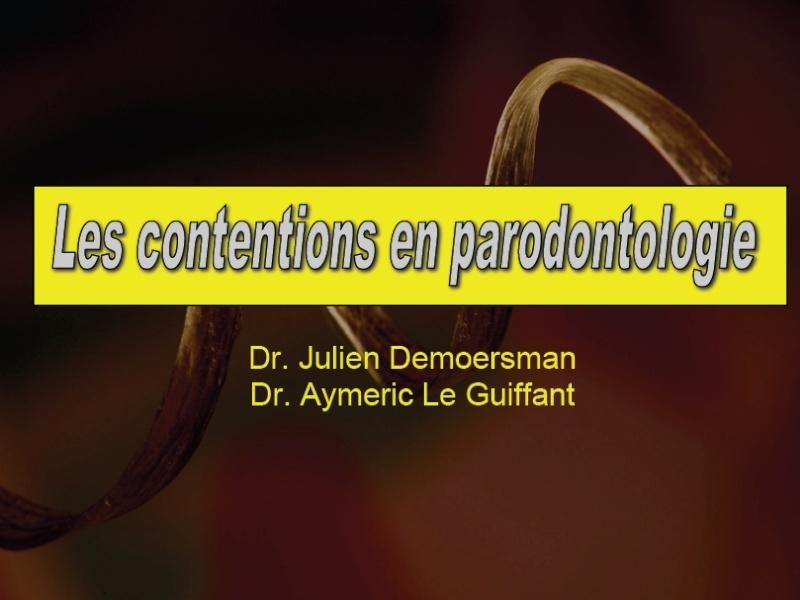 Les contentions en parodontologie 39414910