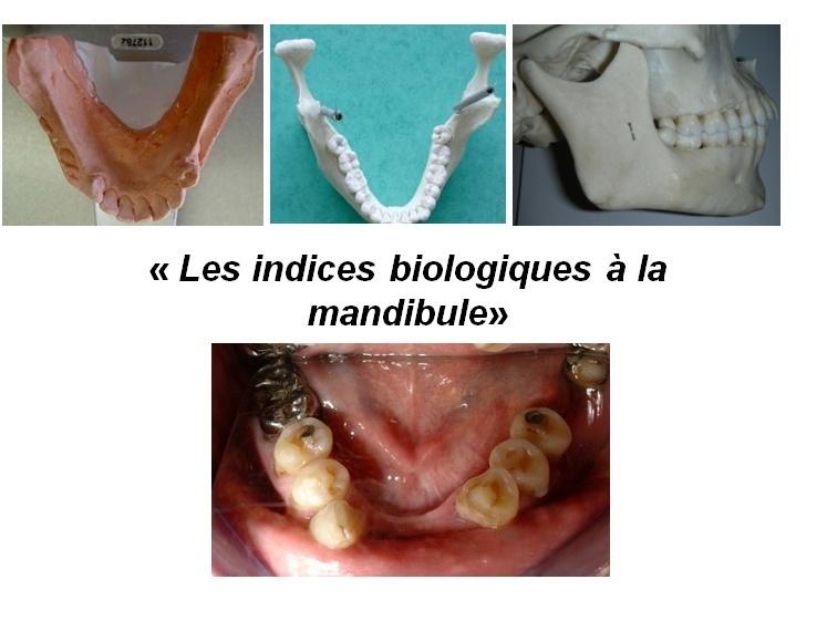 Les indices biologiques à la mandibule 510