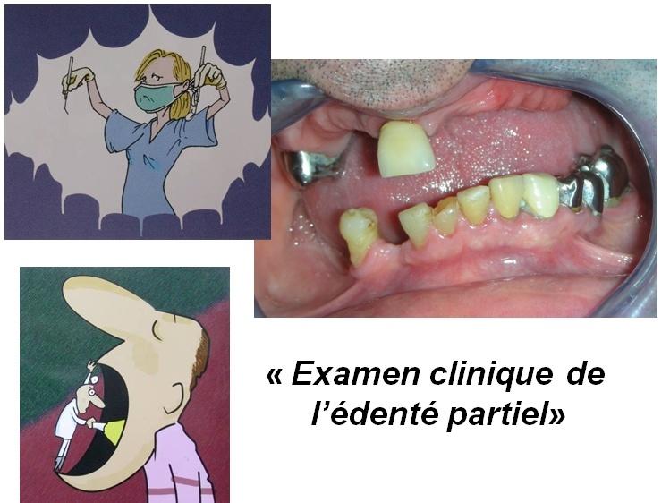 Examen clinique de l'édenté partiel P210