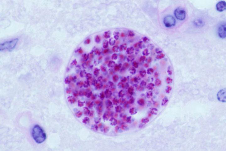 d'effroyables parasites qui prennent contrôle du corps de leur hôte pour accomplir leur sombre dessein 12-eff14