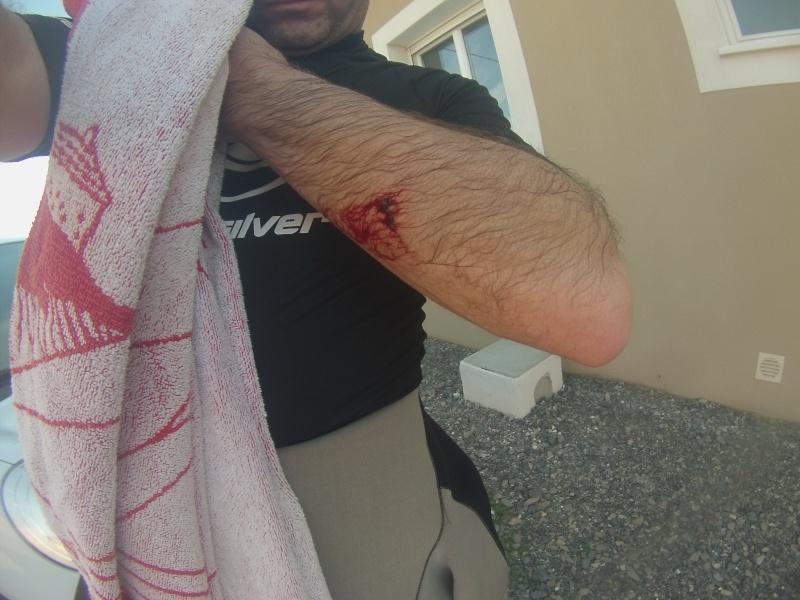 accident de SUP Blessu10