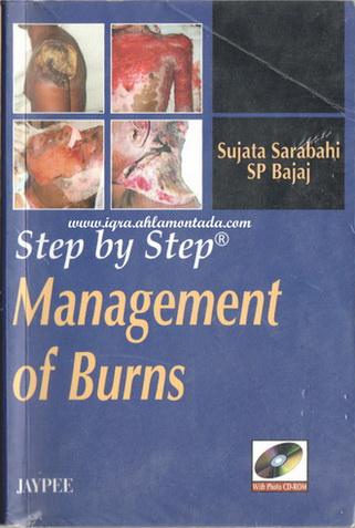 Management 0f Burns by Sujata Sarabahi  70813