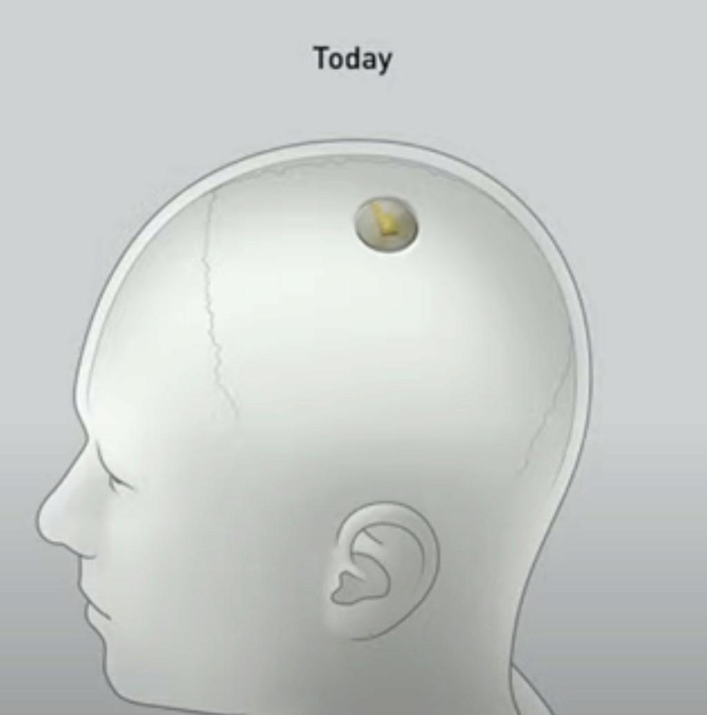 شريحة يتم زراعتها في الرأس يتحكم بها عبر تطبيق الجوال  Eeeeeo22