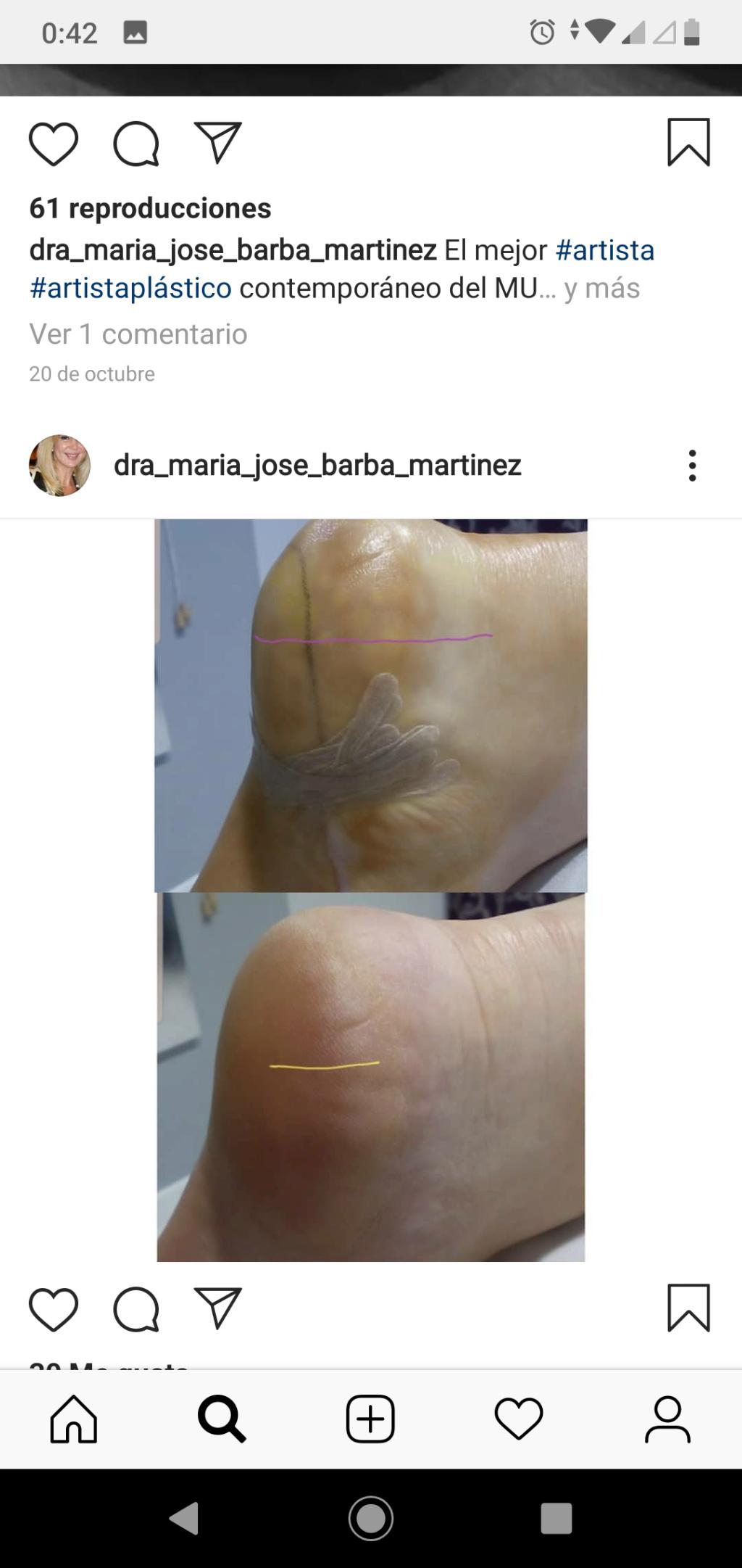 Implantes sin cirugía en los talones. Máximo 4cm - Página 14 Screen12