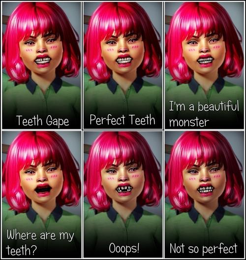 Un petit tour chez le dentiste, ça vous dit ? (dents) Tumblr15
