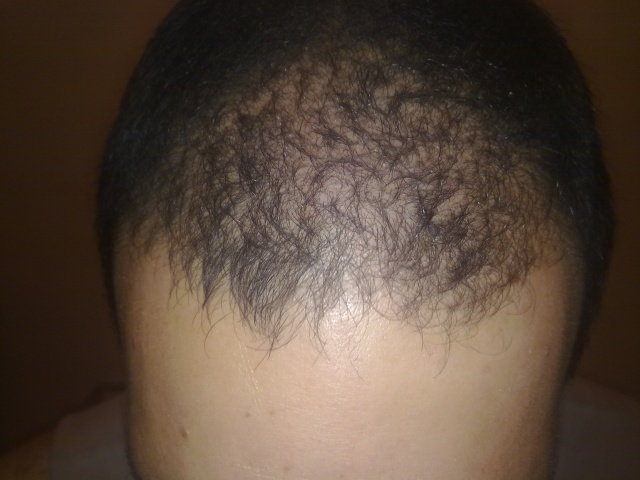 Regrowth Photos DT-CPR method  - Page 2 12042010