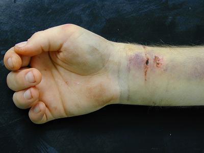 Mise en situations – Les fractures - Partie 1 Aspect10