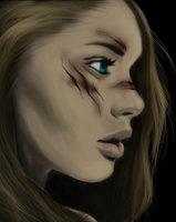 Adolescente avec cicatrice sur le visage Avatar11