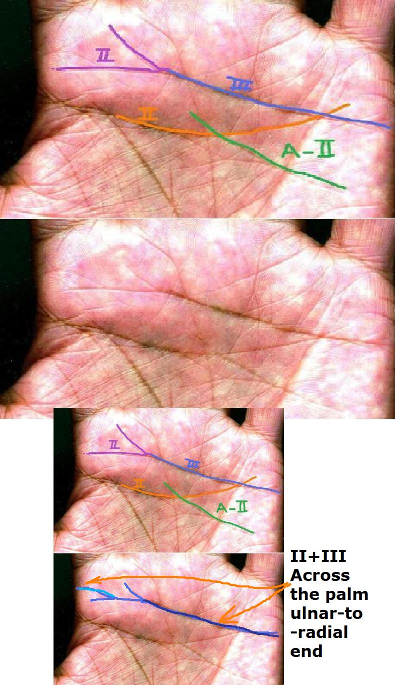 How to discriminate a simian crease from a Sydney line and a Suwon crease! - Page 7 Final-10