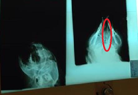 Waly, gravement accidenté, mutiples fractures de la mâchoire +1200€ de frais Waly_r11