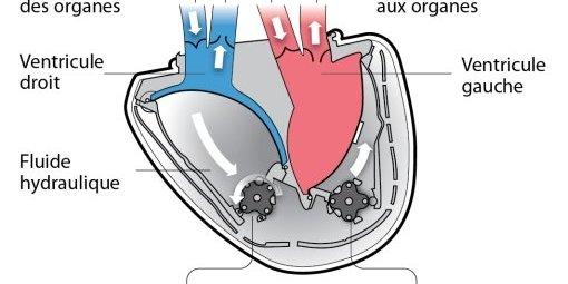 Carmat implante pour la première fois un cœur artificiel à l'hôpital Georges-Pompidou à Paris L-impl10