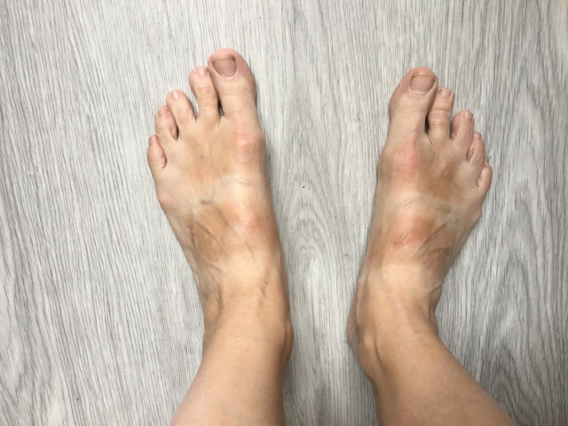 6 juillet : nos pieds Image302
