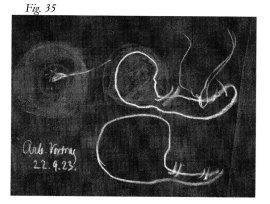 Rudolf Steiner : Sels – Hydrates de carbone - Graisse Steine21