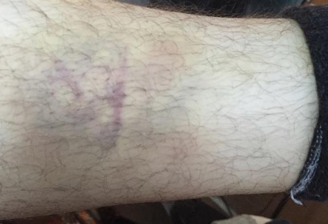 [Retex] Gras, bedaine, risque des maladies de civilisation Captur46