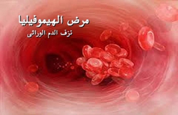 الهيموفيليا  ( haemophilia  ) 150