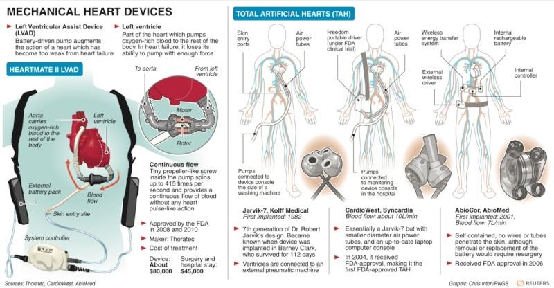 Here's How Mechanical Hearts Work Screen10