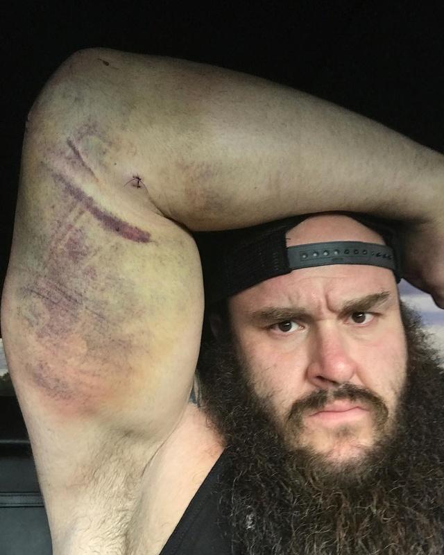 [Forme] Une top star de la WWE blessée ? [Mis à jour] 18579411