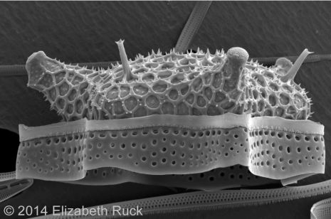 The amazing diversity,  beauty, and enigmatic genome of Diatoms 2014-010
