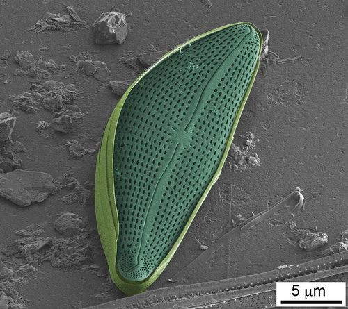 The amazing diversity,  beauty, and enigmatic genome of Diatoms F5925710