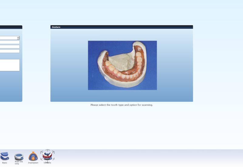 Scanner Identica Blue  - Page 8 Dental12