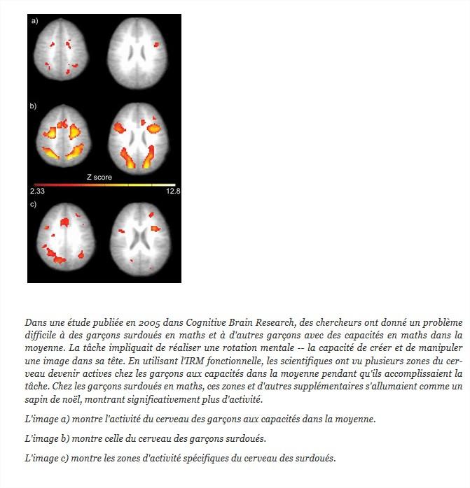 """""""lettre d'un atypique à son ancienne drh"""" témoignage Neurol10"""