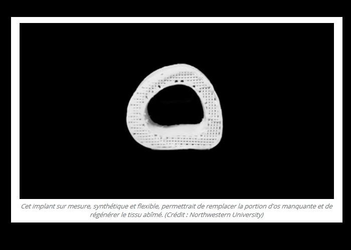 Imprimé en 3D, cet os synthétique permettra bientôt de réparer les fractures à moindre coût Bn22