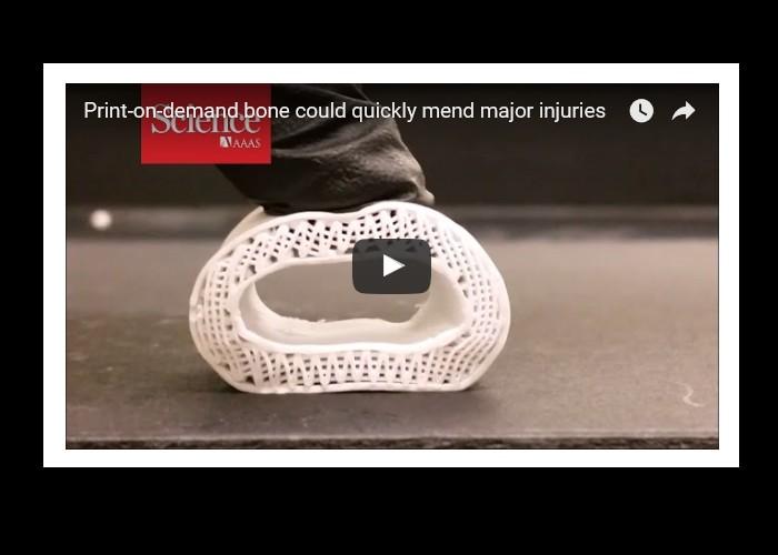 Imprimé en 3D, cet os synthétique permettra bientôt de réparer les fractures à moindre coût Bn24