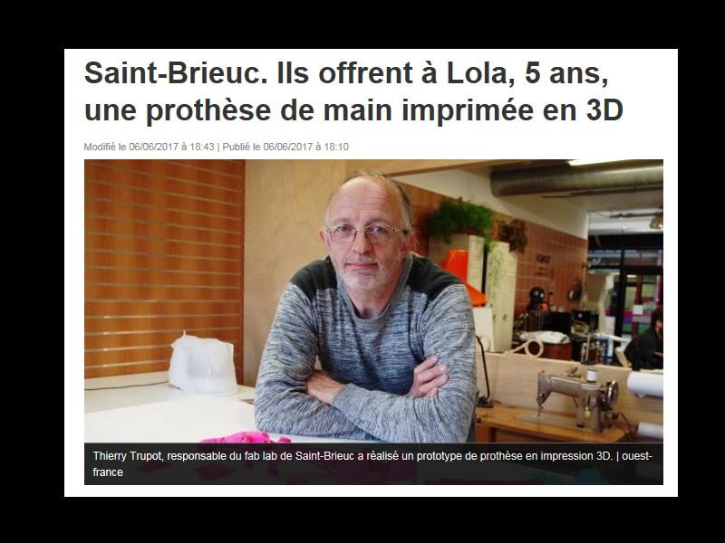 Saint-Brieuc. Ils offrent à Lola, 5 ans, une prothèse de main imprimée en 3D M46