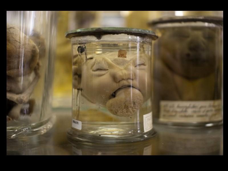 Dupuytren : l'étrange musée d'anatomie de Paris Sans1009
