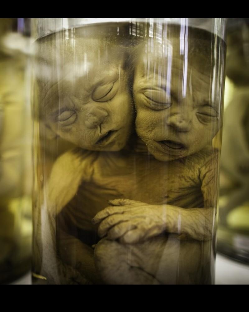 Dupuytren : l'étrange musée d'anatomie de Paris Sans1011