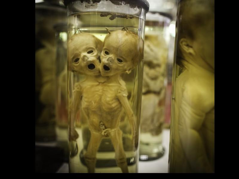Dupuytren : l'étrange musée d'anatomie de Paris Sans1013