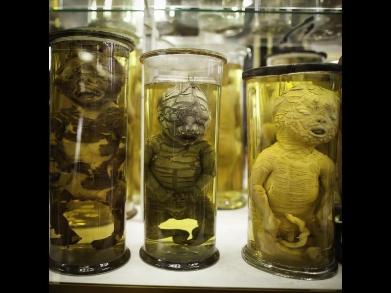 Dupuytren : l'étrange musée d'anatomie de Paris Sans1014