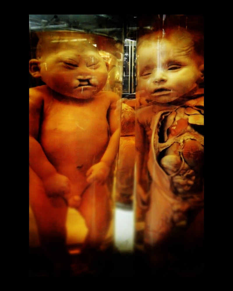 Dupuytren : l'étrange musée d'anatomie de Paris Sans1017