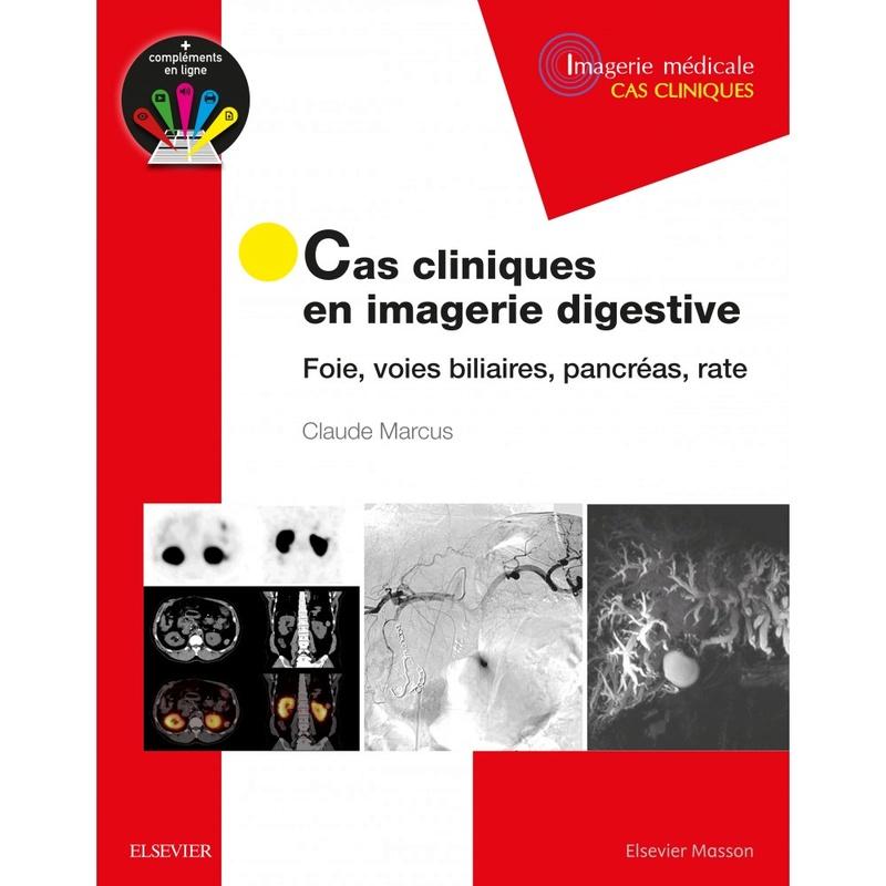 """"""" Nouveau """"  Cas cliniques en imagerie digestive  ( Mai 2017) Cas-cl10"""