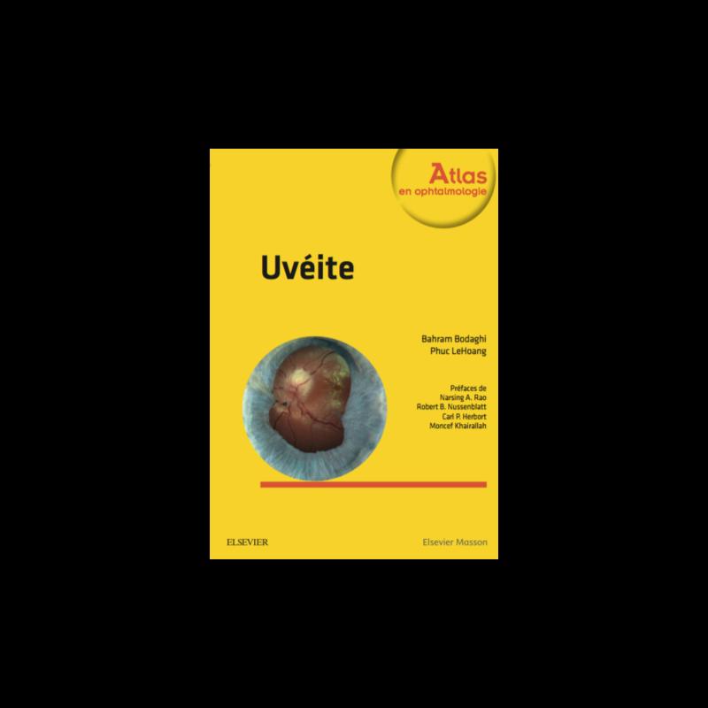 Exclusive : Uvéite (Atlas en ophtalmologie) Mai 2017 Uveite10