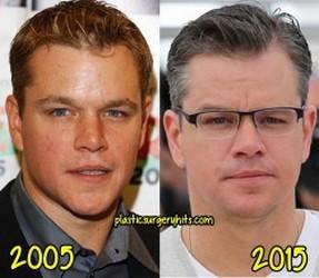 chanteurs et acteurs avant et aujourd hui  Matt_d10