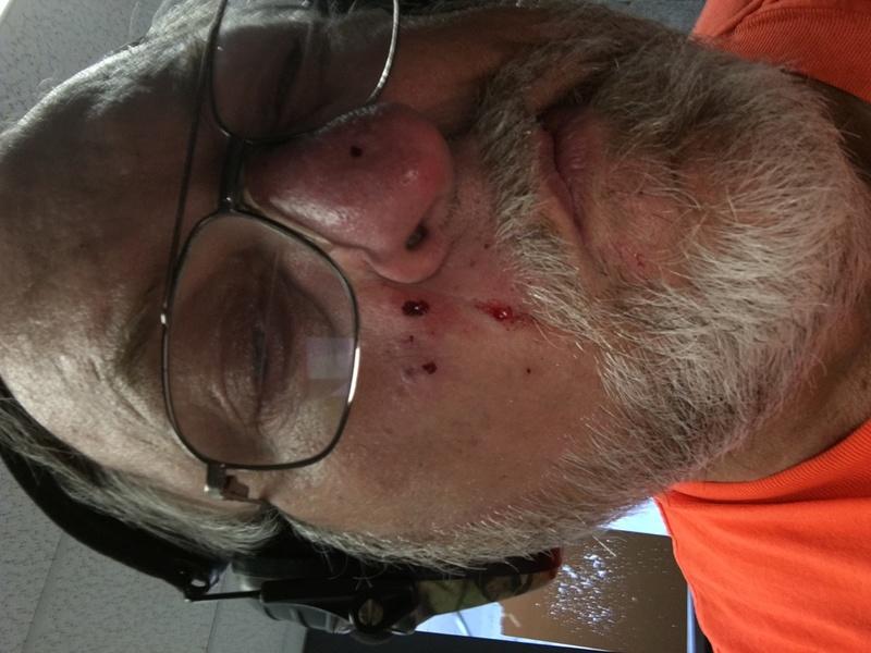 Protective Eyeware vs. Correction? Img_0010