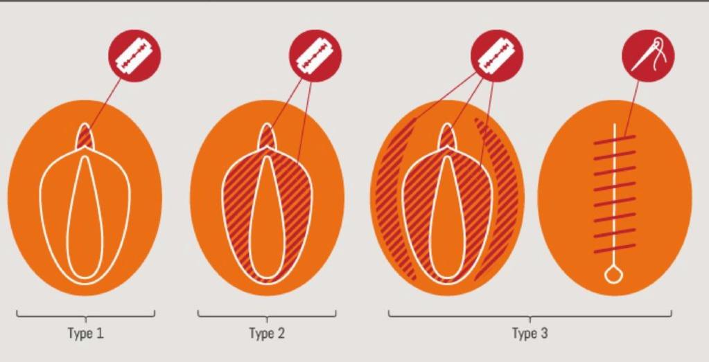 Ablación del clítoris, mutilaciones genitales a niñas. En España también lo hacen. - Página 2 15573213