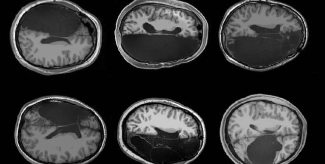 Cerebro,  neurociencia. Estudio  histórico sobre maduración  y crecimiento cerebral. - Página 2 15741710