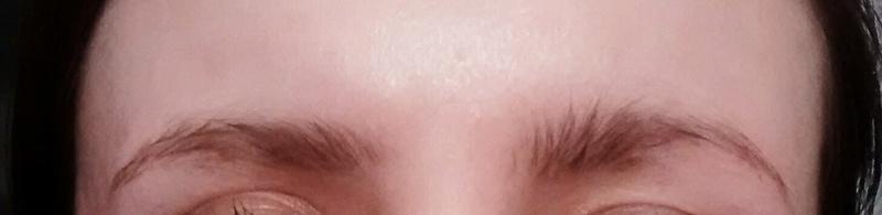 Démangeaisons + pertes de sourcils + perte de cheveux Img_2011