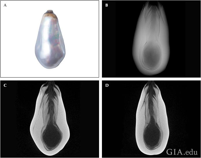 Perle sculptée en bague Fig14_10