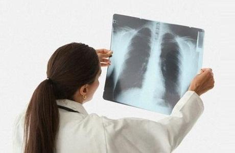 Comment rendre nos poumons propres ? 13729410