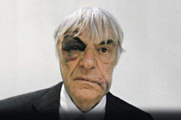 Actu : Le visage tuméfié de Bernie Ecclestone dans une pub de l'horloger Hublot - Page 2 22180910