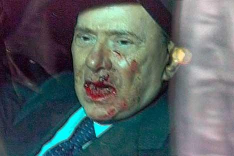 Actu : Le visage tuméfié de Bernie Ecclestone dans une pub de l'horloger Hublot Berlu_10